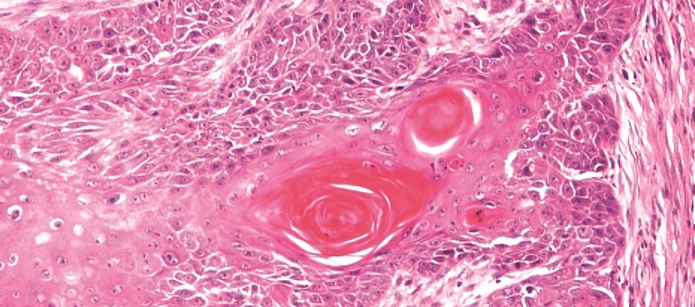 Early invasive squamous cell carcinoma